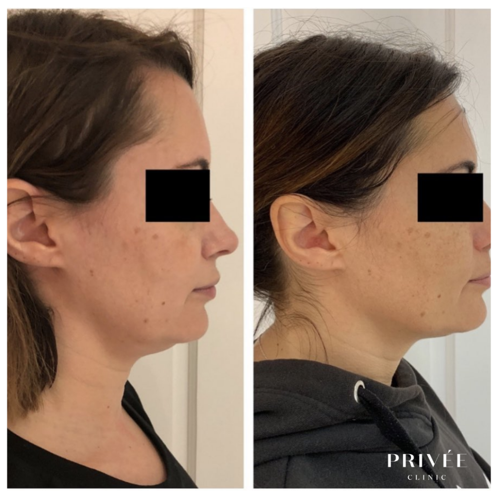 Visibly slimmer jawline 4 weeks post sub-mental fat injections